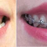 Aparat dentar – progrese dupa 18 luni