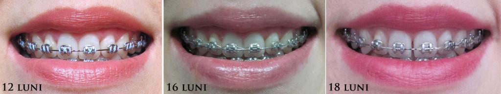 aparat-dentar12-18-luni