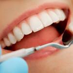 Aparat dentar – cand mergem la stomatolog