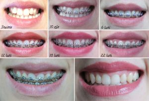 aparat-dentar-evolutie