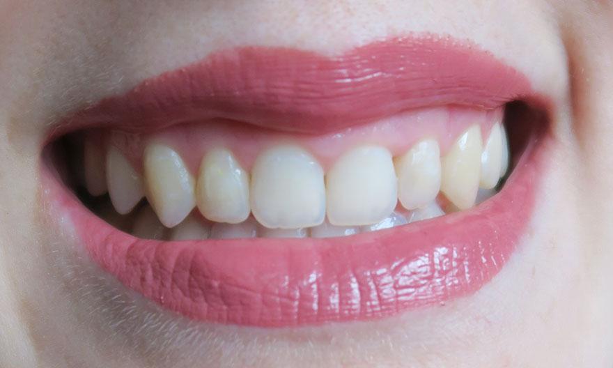 aparat-dentar-rezultat-final