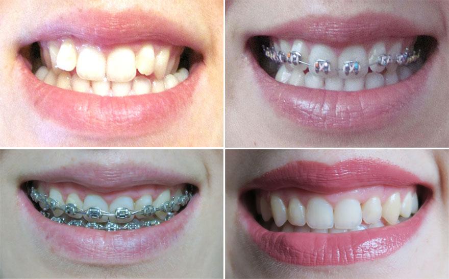 aparat-dentar-inainte-dupa