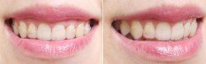 contentie-mobila-aparat-dentar